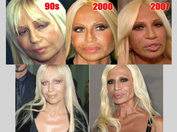 Top 10 Most Drastic Plastic Surgeries Gone Wrong for our Most Favorite Celebrities