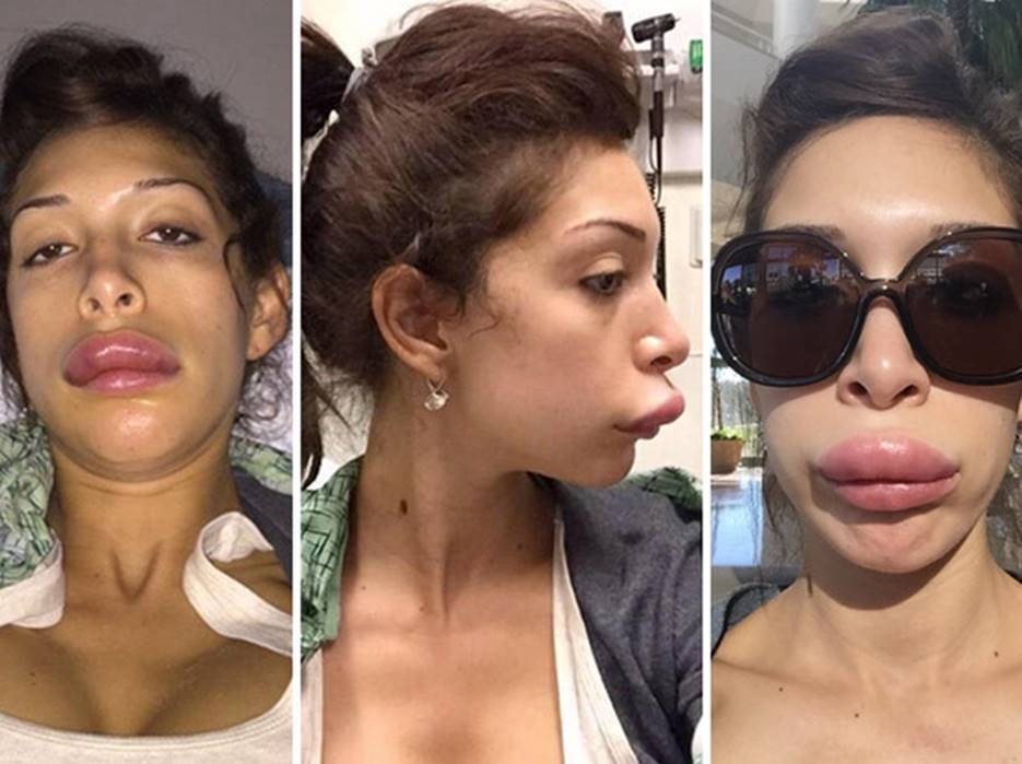 Farrah Abraham's Before and After